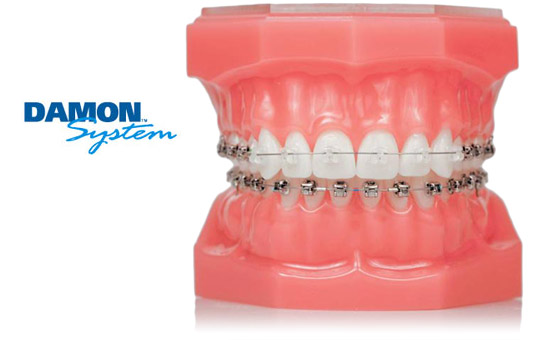 damon-braces-model